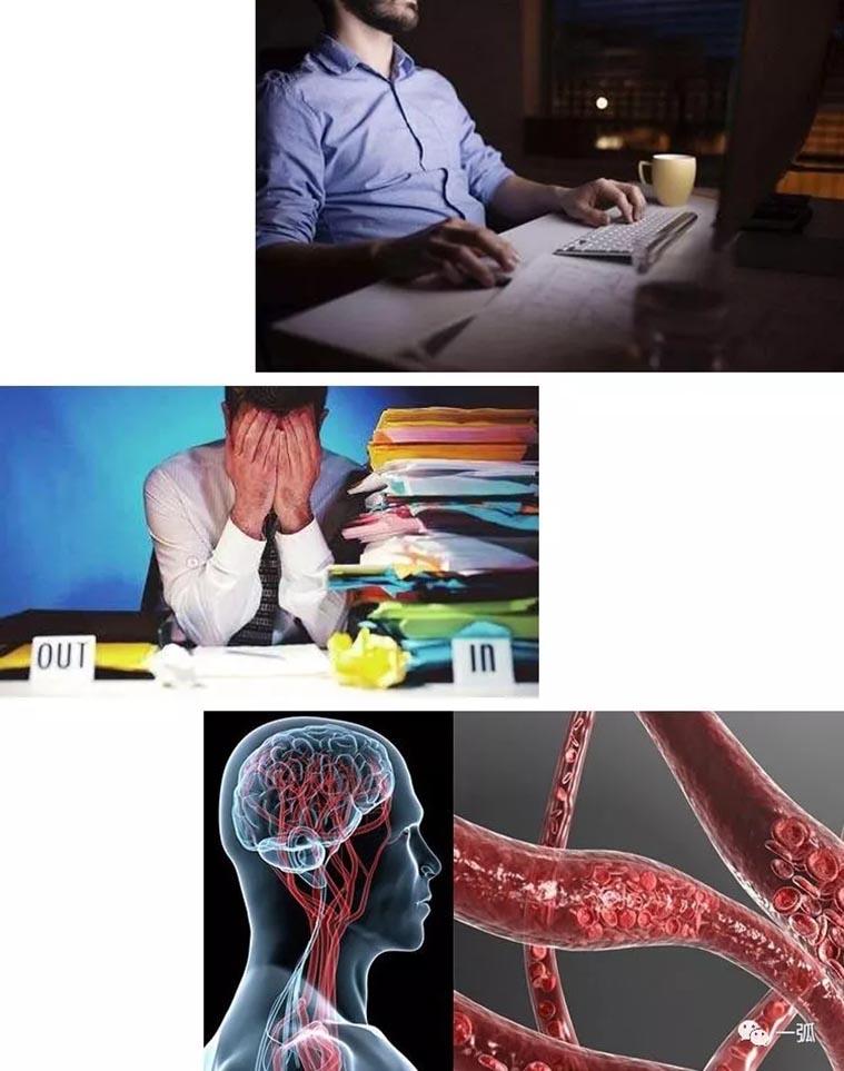 睡眠少于6小时易患代谢性综合征